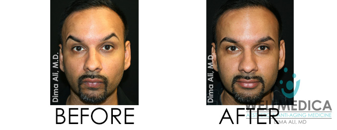 Botox for Smokers Lines Before and After Dr. Dima Reston VA BOTCHED botox