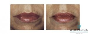 Dermal Fillers for Smokers Lines