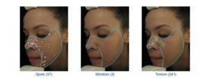 VISIA - Digital Skin Analysis