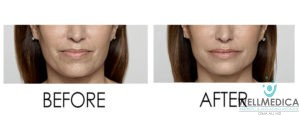 No Downtime Laser Peel for Smokers Lines