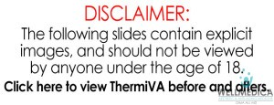 ThermiVA Before and After