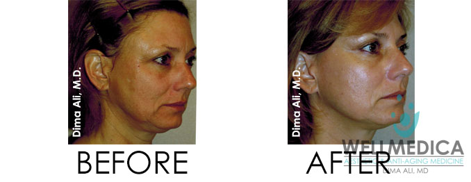 PDO thread lift insta lift non-surgical face lift performed at wellmedica by Dr. Dima