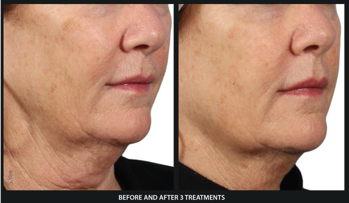 before and after venus viva treatment for skin rejuvenation