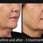skin rejuvenation at WellMedica - D.C Reston Ashburn