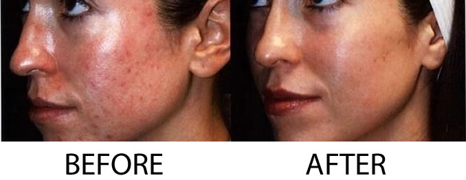 Photodynamic therapy before and after - WellMedica.com