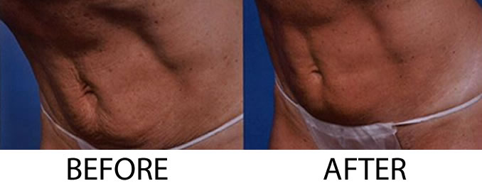ThermiTight before and after image