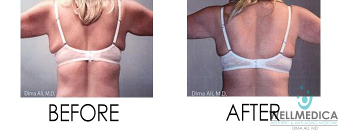 Venus Freeze Legacy Before and After
