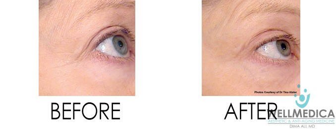 Smoothbeam-Collagen Stimulation Before and After