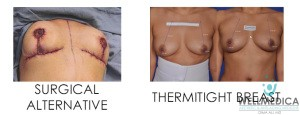 ThermiTight Breast Lift