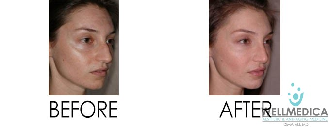 Fat Transfer Before and After Treatment