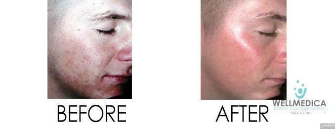 Smoothbeam acne