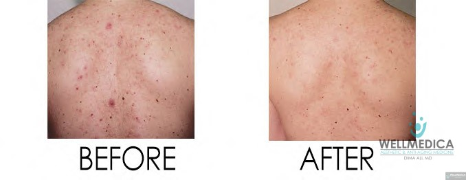 Smoothbeam acne