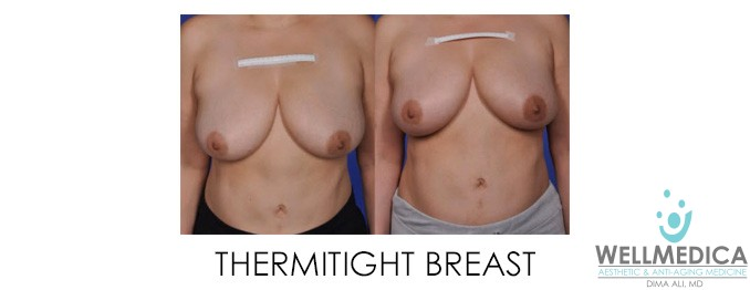 ThermiTight Breast Before and After