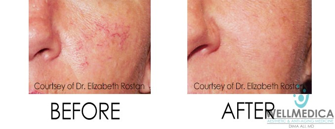 Telangiectasia Before & After