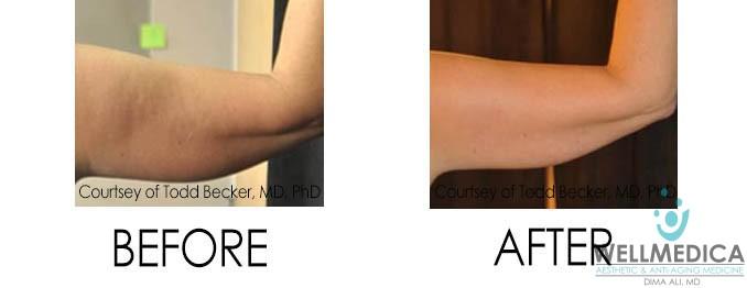 VelaShape III Before and After