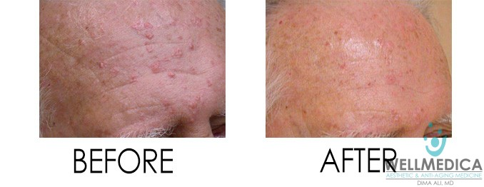 Smoothbeam Acne Therapy Before and After Pictures