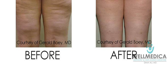 VelaShape III Before and After