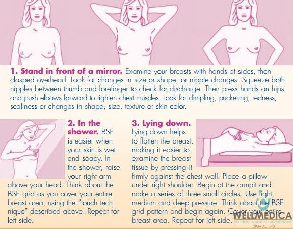 breastexam