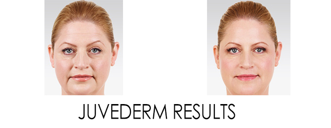 Juvederm Doctors in Reston