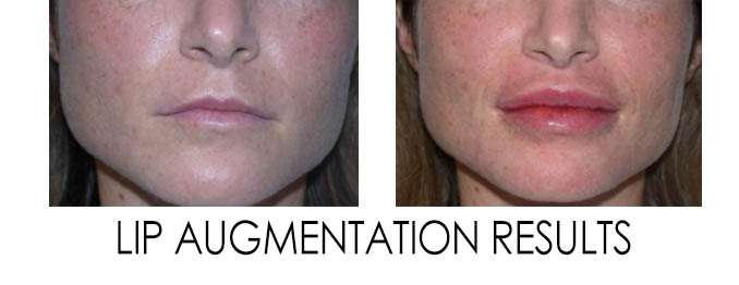 Lip Augmentation Reston