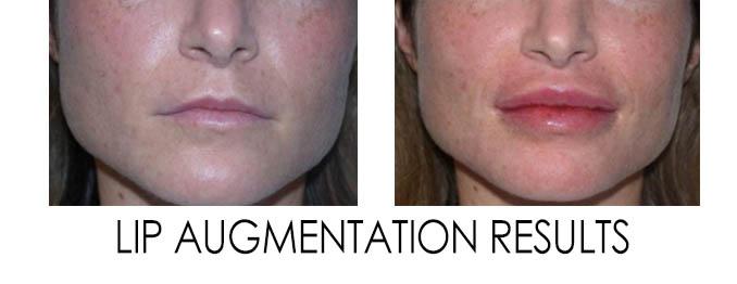 lip injections in Reston VA