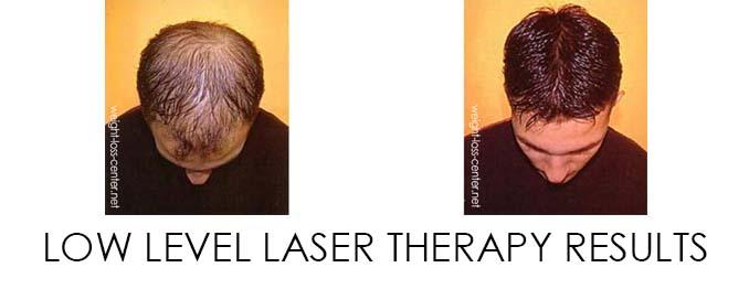 Low Level Laser Thearpy