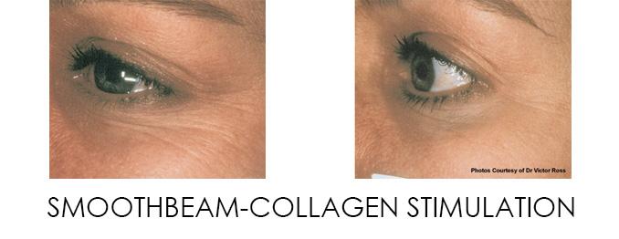Smoothbeam Collagen Stimulation