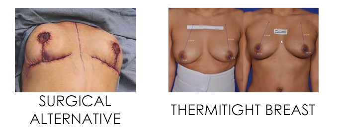 ThermiTight Breast - Non-invasive