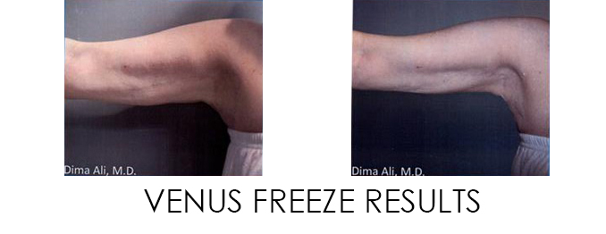 Venus Freeze Results from Dr. Dima Ali's Patient