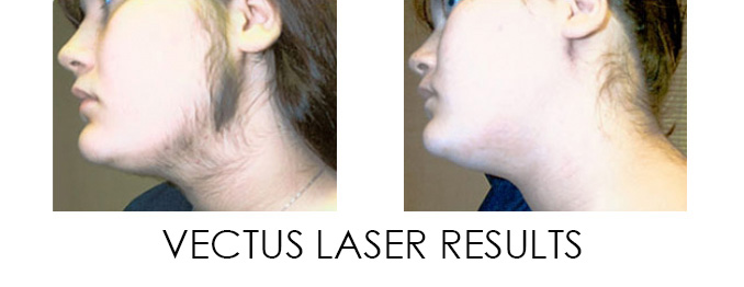 Vectus Laser for Unwanted Hair Removal in DC, Reston, Ashburn, Great Falls and Arlington