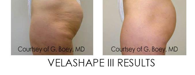 VelaShape Results