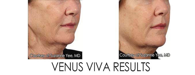 Anti-aging in Reston | Great Falls | Washington D.C | Virginia
