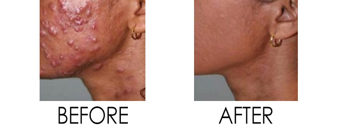 Acne Treatment Reston