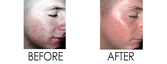 Acne Treatment Ashburn