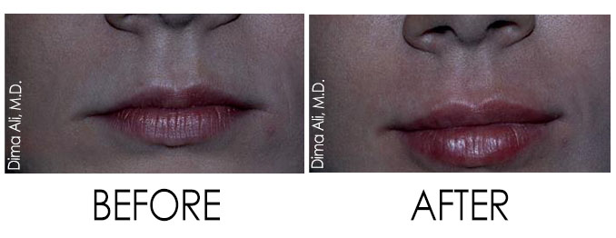 How to get big lips - big lips treatment