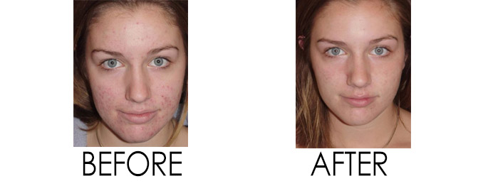 Acne Treatment D.C