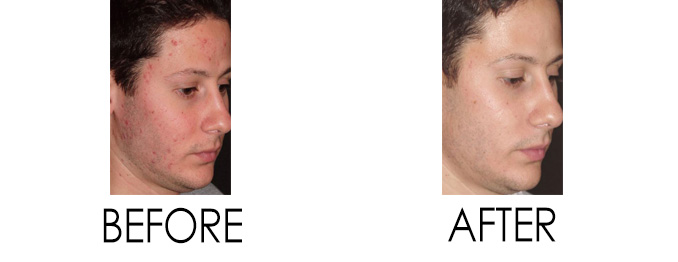 Acne Treatment in Reston
