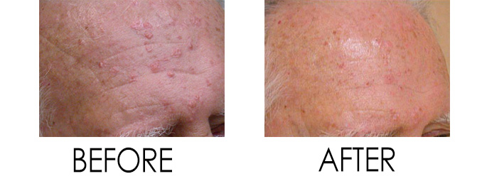 Acne Treatment at WellMedica