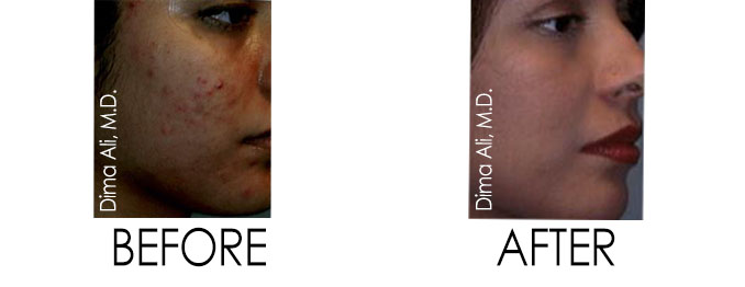 Acne Treatment - Before and After