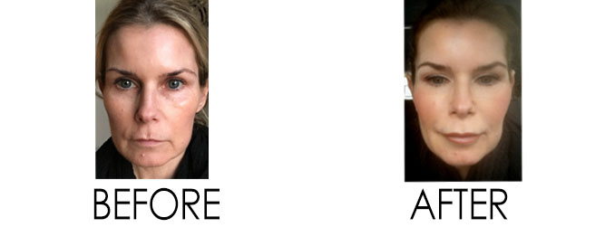 Before and After Restylane Lyft