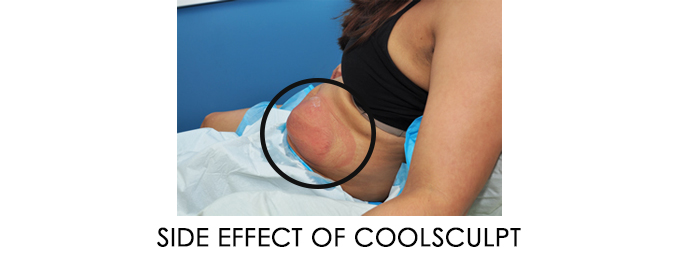 side effect of coolscuplting vs ultrashape power reston va