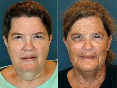 Beauty Myth Skin Tips Reston VA