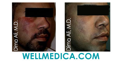 Birthmark and Mole Removal Before and After Tysons VA