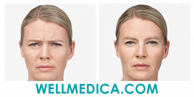 Cosmetic Injections Botox for Wrinkles and Fine Lines BEFORE AND AFTER