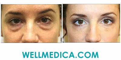 Removing Hollow Eyes Before and After Reston VA