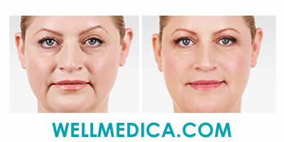 Juvederm Beofre and After Treatment