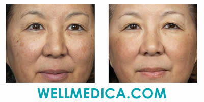 No Downtime Laser Peel Before and After Chemical Peel