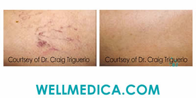 Sclerotheraphy Treatment for Veins Before and After Washington DC