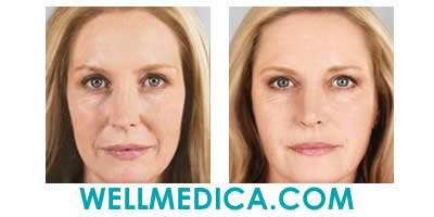 Selphyl Treatment Before and After