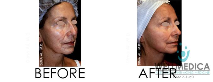 Venus Viva Before and After WellMedica Dr. Dima